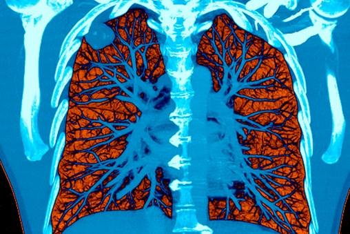 A.I. Took a Test to Detect Lung Cancer. It Got an A.
