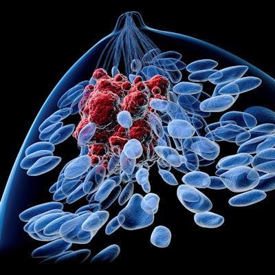 Tissue Enhancement on Breast MRI Informs Cancer Risk