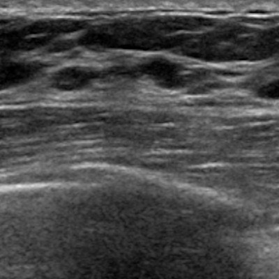 Ultrasound After DBT Obviates Diagnostic 2D Mammo