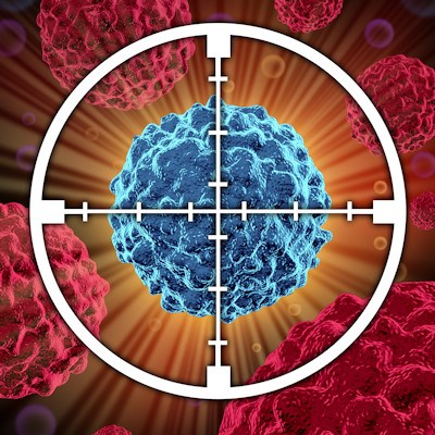 CT Tumor Evaluation Criteria May Need to Be Reworked