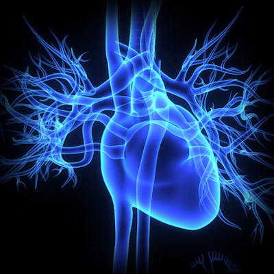 CT CAC Reveals High Heart Disease Risk in South Asian Men