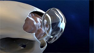 Maryland Med Device Company Announces Second US Commercial Product Launch in Past Two Months with Their novel ClearFit™ Cranial Implant Solution